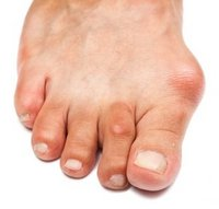 Rockville Podiatrist | Rockville Bunions | MD | Dr Ira M. Deming |